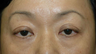 Asian blepharoplasty with internal ptosis repair
