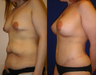Lower Body lift, Breast Augmentation