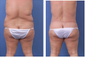 Central body lift with liposuction of thighs and back, age 42