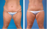 Central body lift with liposuction age 32