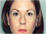 Chemical Brow Lift