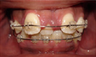 Braces and Extraction
