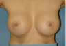 Bilateral Breast Augmentation
