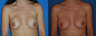 capsulectomy/repostion of implants submuscular/circumareolar mastopexy