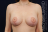 Bilateral Breast Augmentation Mastopexy