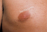 Male Breast reduction-Gynecomastia. Reduced size of nipples.