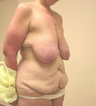 Breast Reduction Surgery and Tummy Tuck