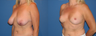 Breast reduction/breast lift