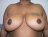 Breast reduction using the Ultimate Lift