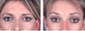 Brow lift at age 39