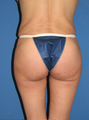 Buttock augmentation with implant, Del Mar butt tuck