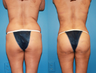 Buttock Augmentation with fat transfer, liposuction abdomen and hips