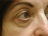 Fractional CO2 Laser Resurfacing - The Madonna Lift
