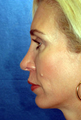 Chin Implant and Rhinoplasty