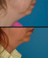 Chin implant - chin augmentation and neck liposuction