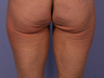 CoolSculpting to Banana Roll, Upper Posterior Thighs
