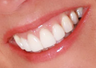 Gum Lift and Porcelain Veneers