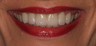 Combination of Veneers and Crowns