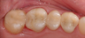 Dental Crowns and Tooth Colored Fillings