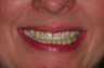 Dental Implants Teeth in an Hour