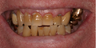Denture, crown, implant, mercury removal