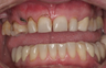 Dental Implants and Dental Veneers