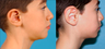Otoplasty - Ear pinning surgery