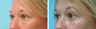 Lower Eyelids (blepharoplasty)