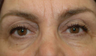 Blepharoplasty and Fat transfer