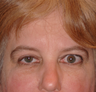 Ptosis repair and eyelid retraction surgery