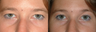 Bilateral Upper Lid Blepharoplasty with Standard Endoscopic Browlift
