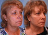 Facelift, necklift, upper & lower blepharoplasty