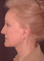 Composite facelift, midface lift, upper and lower blepharoplasty, browlift and ptosis repair