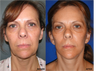 Facelift, Neck lift, Browlift, Upper and Lower Blepharoplasty (eyelid lift)