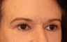 Eyelid Surgery / Fat Grafting