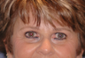 Pretrichial forehead lift and upper blepharoplasty