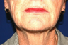 Facelift, Intense Pulsed Light