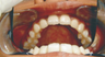 The Hollywood smile with Invisalign