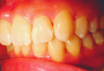 Complex orthodontics with Invisalign
