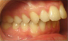 Invisalign 24 Months Severe Over Jet and Tongue Thrust