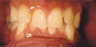 Invisalign for complex cases