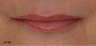 Juvederm - Upper and Lower Lip