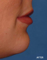 Juvederm Filler to Uppper and Lower Lip