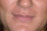 Lip enhancement in a young woman