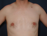 Gynecomatia correction