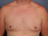 Gynecomastia correction with periareolar reduction