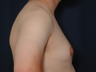 Gynecomastia Correction