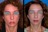Mid-face (cheek) lift and mini-facelift