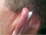 Skin Cancer Surgery on Ear