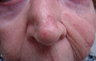 Skin Cancer Surgery on Nose